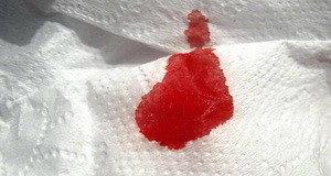 Почему во время месячных выходят сгустки крови