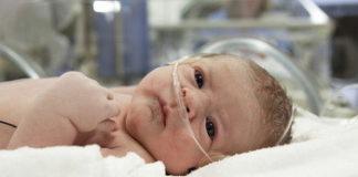 Асфиксия новорожденного: лечение, причины, симптомы, признаки
