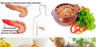 Диета при панкреатите поджелудочной железы: меню при хроническом, остром панкреатите или обострении