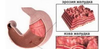 Диета при язве желудка и двенадцатиперстной кишки: меню, список продуктов