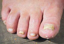 Самые распространенные заболевания ног