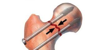 Главное о переломе шейки бедра